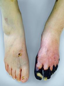 「下肢静脈瘤」とは?症状・原因・治療・予防法を …